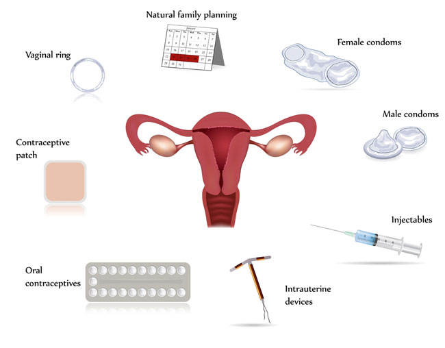 different-contraceptives