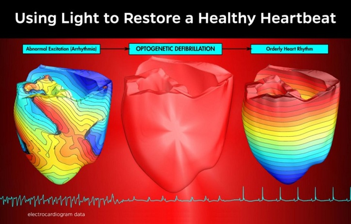 This is an illustration depicting EKG readings before, during and after the use of light -- optogenetic deffibtillation -- to restore a normal heartbeat to an arrhythmic heart. Credit: Patrick M. Boyle/Johns Hopkins University