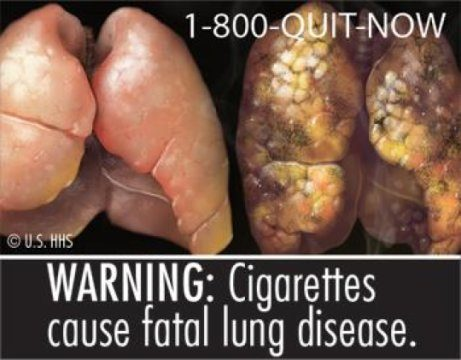 Graphic picture on cigarette packs. Photo credits: FDA.